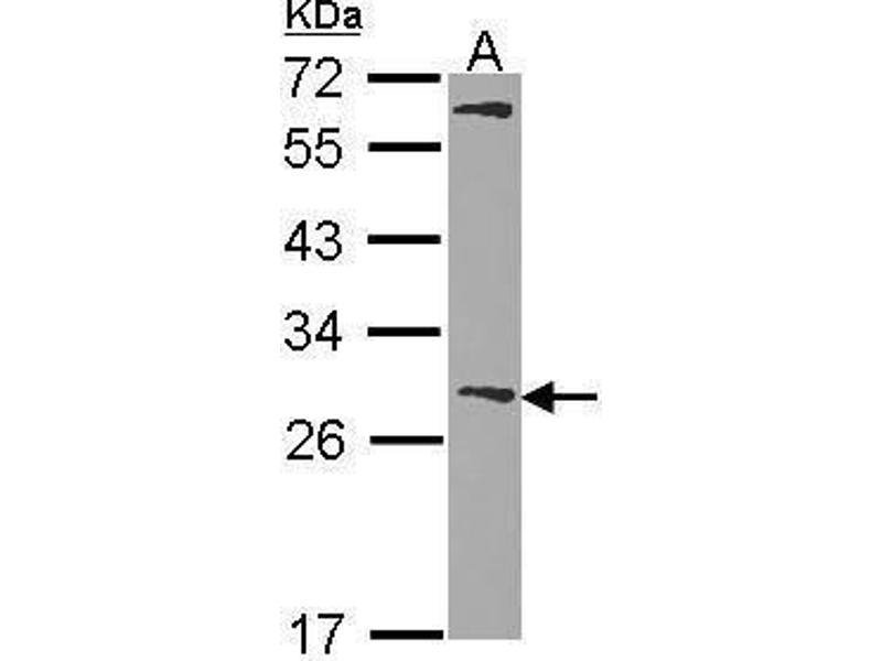 Western Blotting (WB) image for anti-Glutathione S-Transferase mu 1 (GSTM1) (AA 158-168) antibody (ABIN550736)