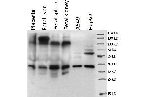 Image no. 1 for anti-Placenta-Specific 1 (PLAC1) antibody (ABIN1855659)