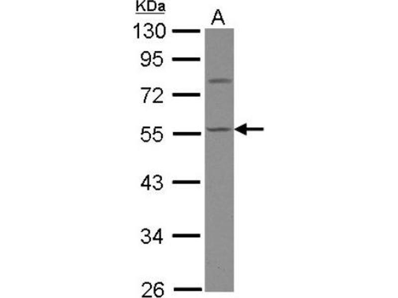 Western Blotting (WB) image for anti-Calsequestrin 1 (CASQ1) (Center) antibody (ABIN4287524)
