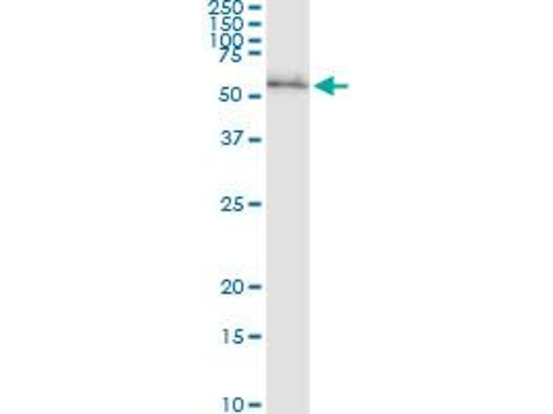Immunoprecipitation (IP) image for anti-Ribosomal Protein S6 Kinase, 70kDa, Polypeptide 2 (RPS6KB2) (AA 1-482), (full length) antibody (ABIN948426)
