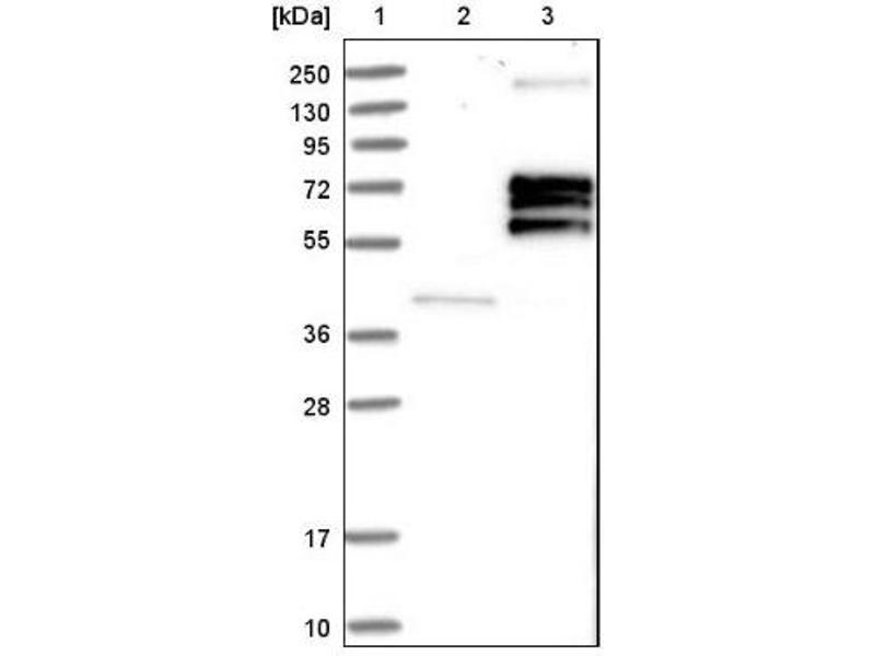Western Blotting (WB) image for anti-IL3RA antibody (Interleukin 3 Receptor, alpha (Low Affinity)) (ABIN4325126)