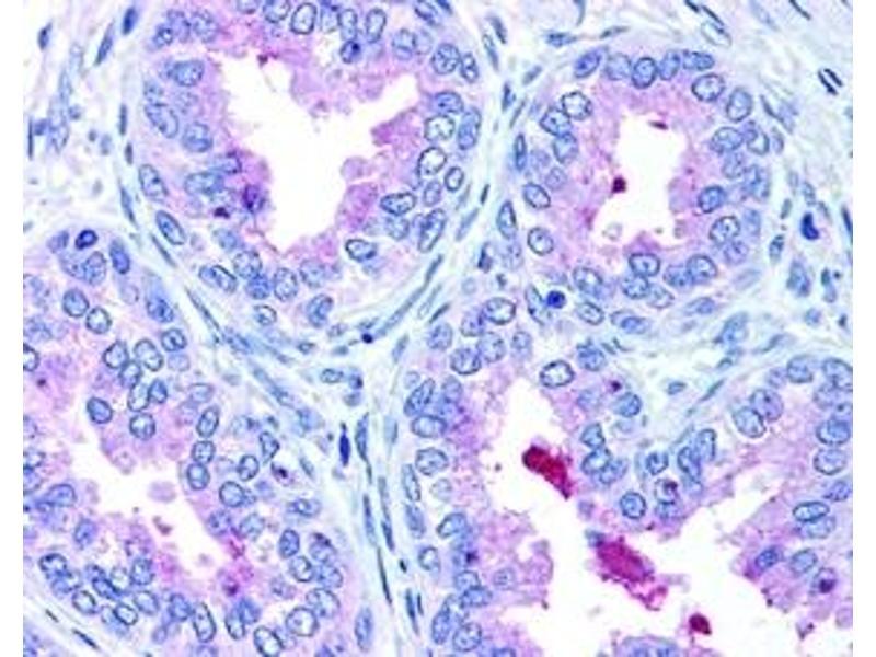 Immunohistochemistry (IHC) image for anti-ATP-Binding Cassette, Sub-Family A (ABC1), Member 1 (ABCA1) (AA 1100-1300) antibody (ABIN152883)