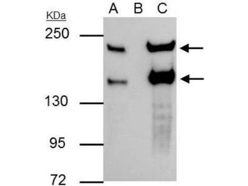 Immunoprecipitation (IP) image for anti-Slit Homolog 2 (Drosophila) (SLIT2) (Center) antibody (ABIN4354560)