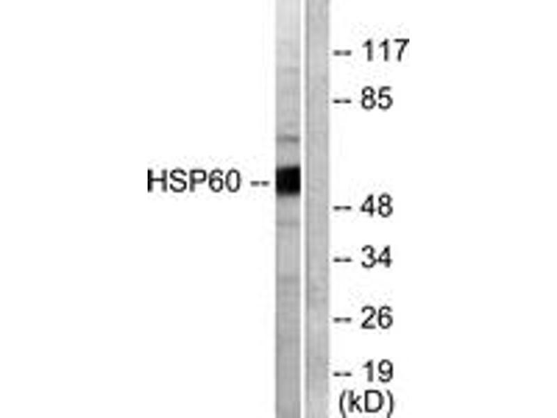 Western Blotting (WB) image for anti-Heat Shock 60kDa Protein 1 (Chaperonin) (HSPD1) (AA 511-560) antibody (ABIN1533313)