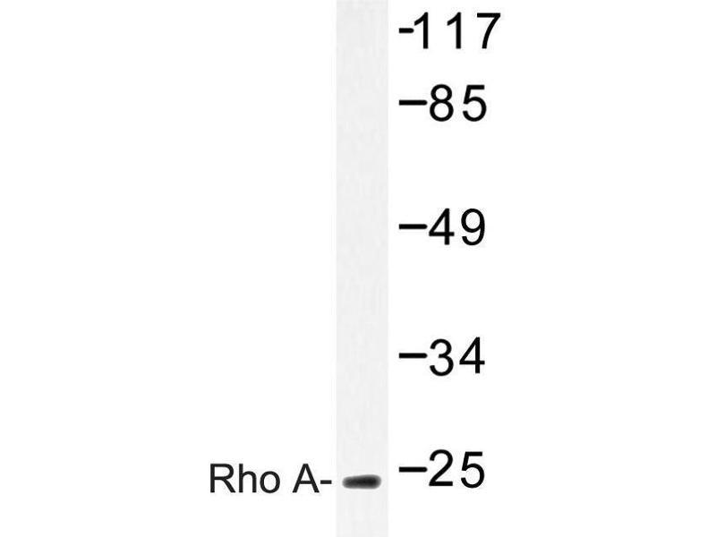 image for anti-RHOA antibody (Ras Homolog Gene Family, Member A) (ABIN272117)