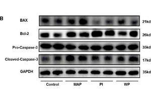Image no. 15 for anti-B-Cell CLL/lymphoma 2 (BCL2) (N-Term) antibody (ABIN2857047)