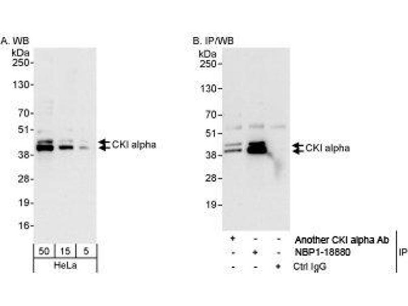 Western Blotting (WB) image for anti-CSNK1A1 antibody (Casein Kinase 1, alpha 1) (AA 287-337) (ABIN438716)