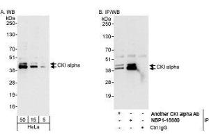 Western Blotting (WB) image for anti-Casein Kinase 1, alpha 1 (CSNK1A1) (AA 287-337) antibody (ABIN438716)