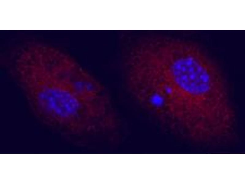 Immunocytochemistry (ICC) image for anti-CD83 (CD83) (AA 22-134) antibody (ABIN5012870)