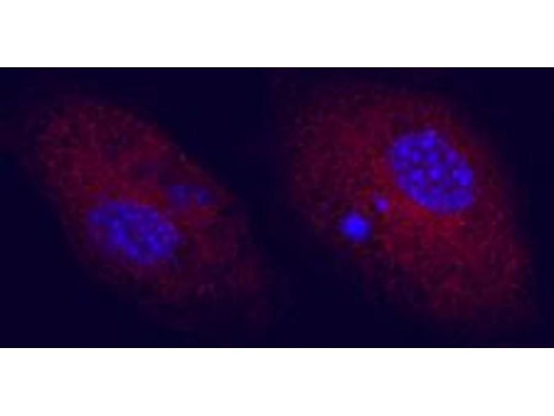 Immunocytochemistry (ICC) image for anti-CD83 (CD83) (AA 22-134) antibody (ABIN5012870)