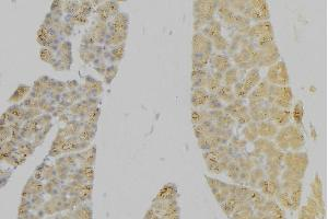 Immunohistochemistry (IHC) image for anti-Interleukin 7 Receptor (IL7R) antibody (ABIN6262569)
