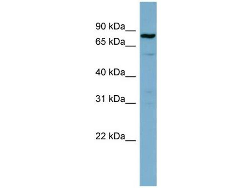 Western Blotting (WB) image for anti-Signal Transducer and Activator of Transcription 3 (Acute-Phase Response Factor) (STAT3) (Middle Region) antibody (ABIN2779321)
