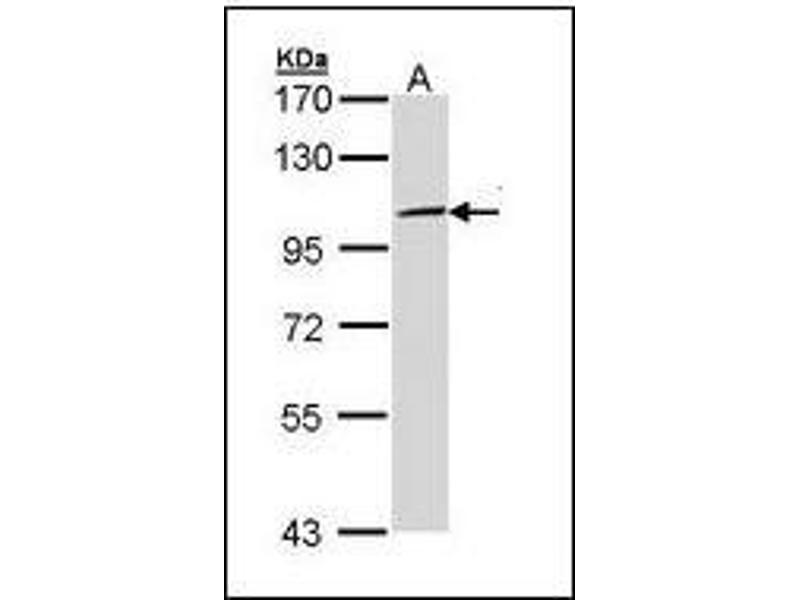 Western Blotting (WB) image for anti-Toll-Like Receptor 3 (TLR3) antibody (ABIN615847)