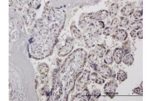 Image no. 3 for anti-High-Mobility Group 20A (HMG20A) (AA 1-347) antibody (ABIN2752266)