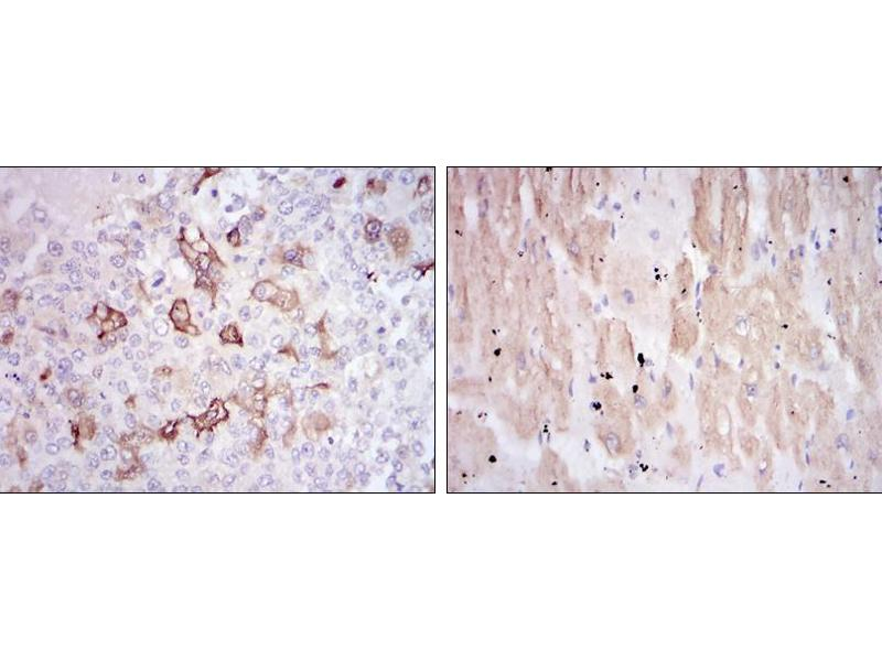 Immunohistochemistry (IHC) image for anti-Heat Shock 27kDa Protein 1 (HSPB1) antibody (ABIN969199)
