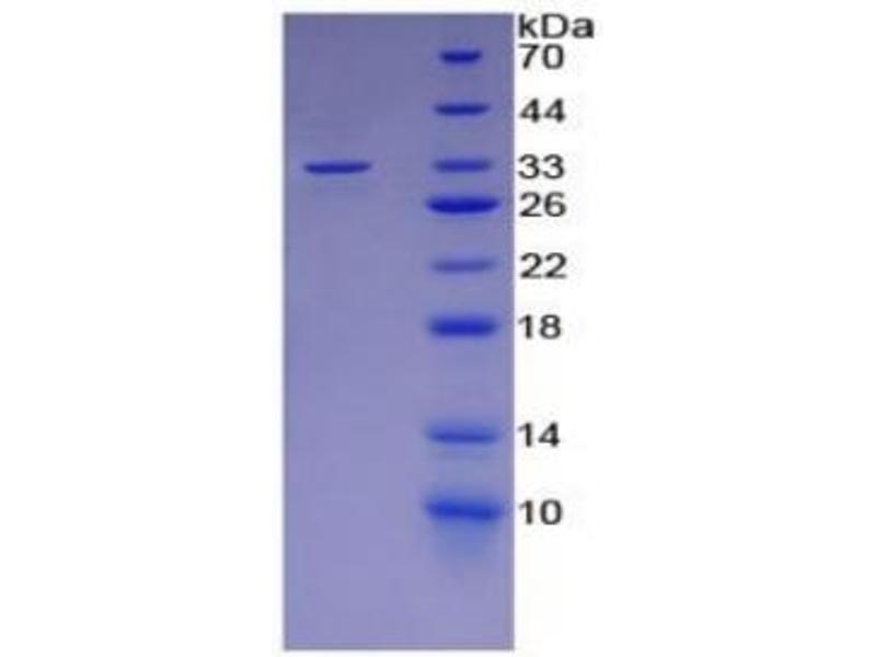 SDS-PAGE (SDS) image for Lipopolysaccharide Binding Protein (LBP) ELISA Kit (ABIN6574276)