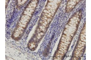 Immunostaining (ISt) image for anti-Hydroxyacyl-CoA Dehydrogenase (HADH) (AA 205-314), (partial) antibody (ABIN561223)