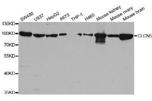 Image no. 1 for anti-Chloride Channel 5 (CLCN5) antibody (ABIN6138667)