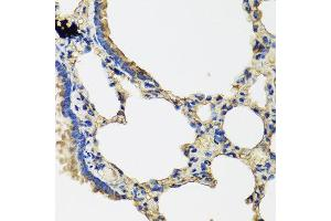Immunohistochemistry (IHC) image for anti-Interleukin 1 Family Member 9 (IL1F9) antibody (ABIN2736964)