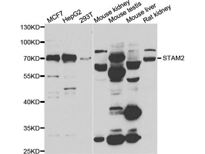 Western Blotting (WB) image for anti-Signal Transducing Adaptor Molecule (SH3 Domain and ITAM Motif) 2 (STAM2) antibody (ABIN6570889)