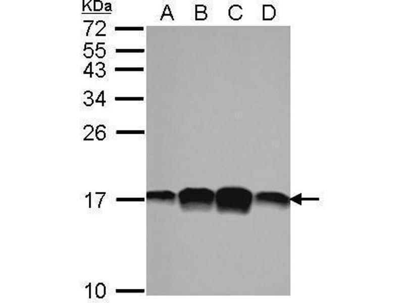 Western Blotting (WB) image for anti-Profilin 1 (PFN1) (Center) antibody (ABIN2855281)