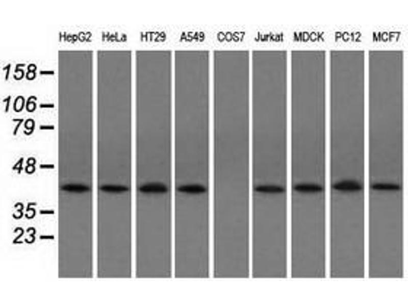 Image no. 2 for anti-Acetyl-CoA Acetyltransferase 2 (ACAT2) antibody (ABIN1496401)
