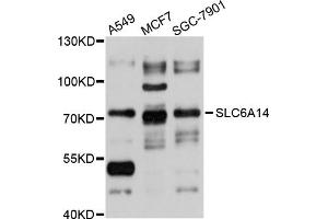 Image no. 1 for anti-Solute Carrier Family 6 (Amino Acid Transporter), Member 14 (Slc6a14) antibody (ABIN4905211)