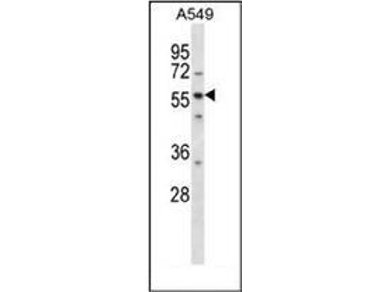 Western Blotting (WB) image for anti-LSM14A, SCD6 Homolog A (S. Cerevisiae) (LSM14A) (AA 310-340), (C-Term) antibody (ABIN953243)