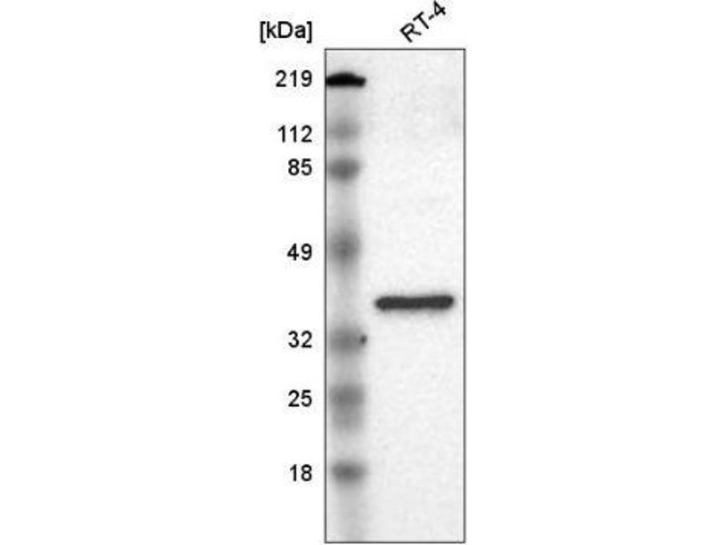 Western Blotting (WB) image for anti-V-Crk Sarcoma Virus CT10 Oncogene Homolog (Avian)-Like (CRKL) antibody (ABIN5076105)