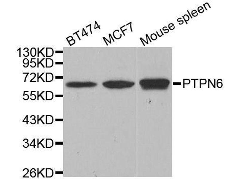 Western Blotting (WB) image for anti-Protein-tyrosine Phosphatase 1C (PTPN6) antibody (ABIN3021975)