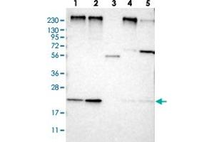 Image no. 1 for anti-Mannose-P-Dolichol Utilization Defect 1 (MPDU1) antibody (ABIN5583690)