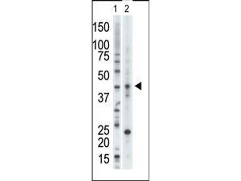 Western Blotting (WB) image for anti-Vaccinia Related Kinase 1 (VRK1) (AA 366-396), (Center) antibody (ABIN391605)