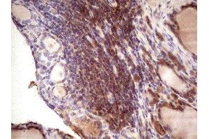 Immunohistochemistry (IHC) image for anti-IGF1 Antikörper (Insulin-Like Growth Factor 1) (ABIN4321545)