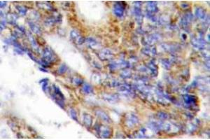 Image no. 1 for anti-Collagen, Type I, alpha 2 (COL1A2) (Chain alpha 2) antibody (ABIN498442)
