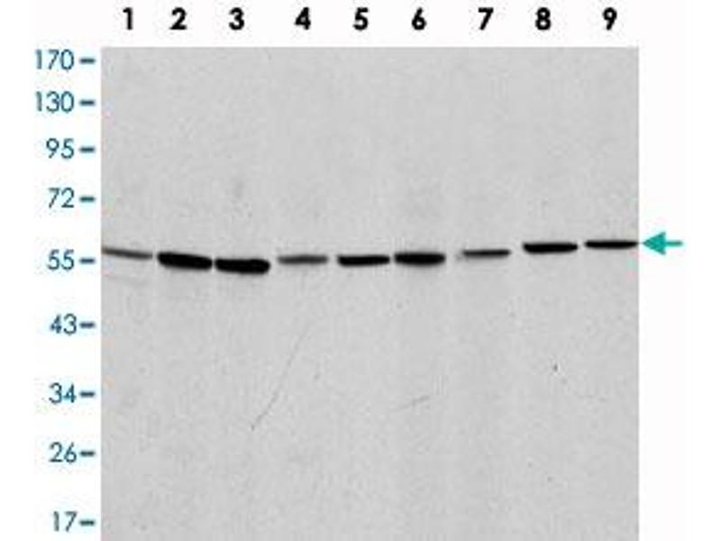 Image no. 1 for anti-Apoptosis-Inducing Factor, Mitochondrion-Associated, 1 (AIFM1) antibody (ABIN5572241)