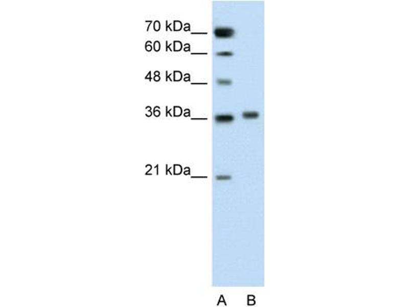 Western Blotting (WB) image for anti-Pipecolic Acid Oxidase (PIPOX) (C-Term) antibody (ABIN310346)