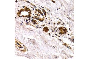 Image no. 2 for anti-Chitinase 3-Like 1 (Cartilage Glycoprotein-39) (CHI3L1) antibody (ABIN3022445)