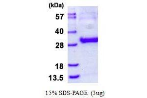 Image no. 1 for Thymidine Kinase 1, Soluble (TK1) protein (His tag) (ABIN1098640)