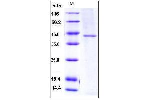 Image no. 1 for Transcobalamin II (TCN2) (AA 1-427) (Active) protein (His tag) (ABIN2003068)