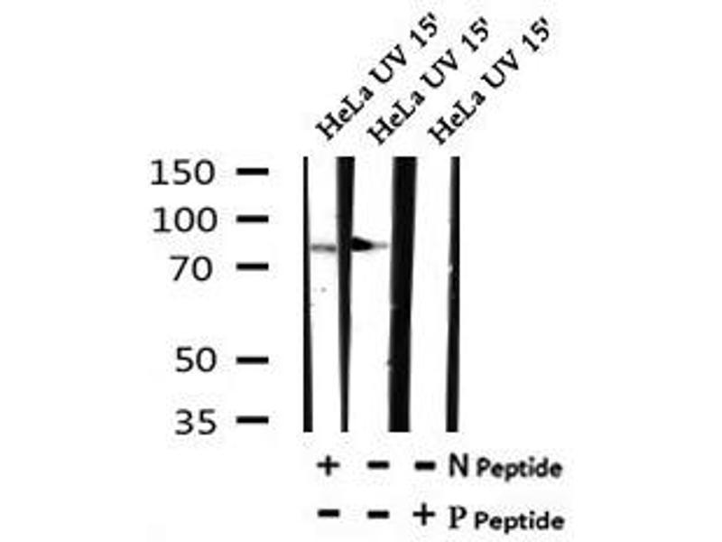Image no. 3 for anti-RAD17 Homolog (S. Pombe) (RAD17) (pSer359) antibody (ABIN6269737)