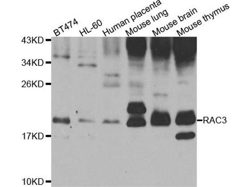 Western Blotting (WB) image for anti-RAC3 Antikörper (Ras-Related C3 Botulinum Toxin Substrate 3 (Rho Family, Small GTP Binding Protein Rac3)) (ABIN4904939)