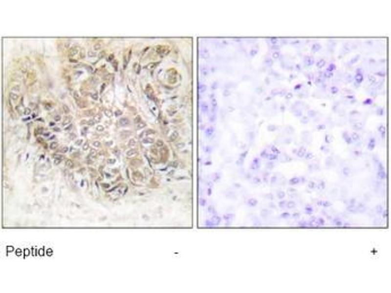Immunohistochemistry (Paraffin-embedded Sections) (IHC (p)) image for anti-Tumor Protein, Translationally-Controlled 1 (TPT1) (Internal Region) antibody (ABIN1449687)