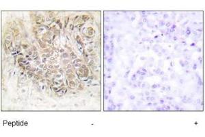 Immunohistochemistry (Paraffin-embedded Sections) (IHC (p)) image for anti-Tumor Protein, Translationally-Controlled 1 (TPT1) (Internal Region) antibody (ABIN5611658)