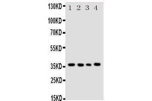 Image no. 4 for anti-Budding Uninhibited By Benzimidazoles 3 Homolog (Yeast) (BUB3) (AA 76-90), (Middle Region) antibody (ABIN3044239)
