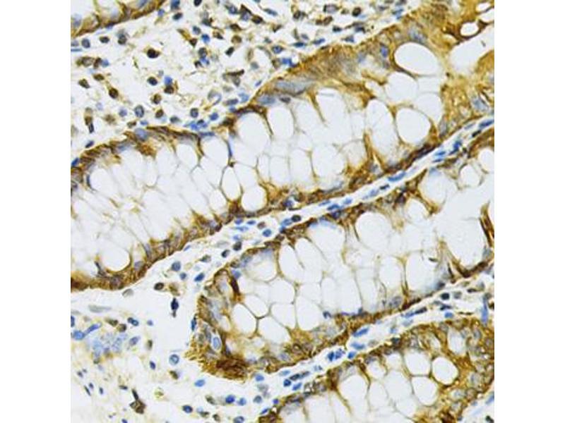 Image no. 2 for anti-Heat Shock Protein 90kDa alpha (Cytosolic), Class B Member 1 (HSP90AB1) antibody (ABIN6567036)