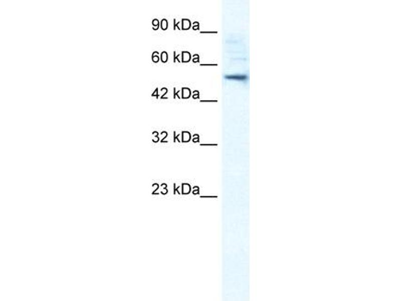 Western Blotting (WB) image for anti-Sphingomyelin phosphodiesterase, Acid-Like 3B (SMPDL3B) (N-Term) antibody (ABIN182898)