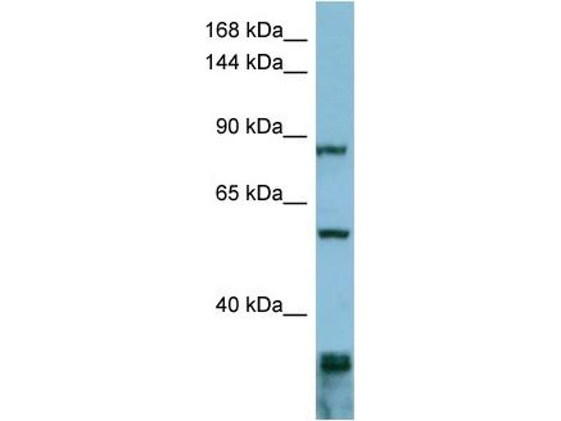 Western Blotting (WB) image for anti-Epidermal Growth Factor Receptor Pathway Substrate 8 (EPS8) (Middle Region) antibody (ABIN503558)