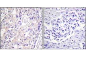 Image no. 2 for anti-Ribosomal Protein S6 Kinase, 90kDa, Polypeptide 3 (RPS6KA3) (AA 331-380), (pThr359) antibody (ABIN1531362)