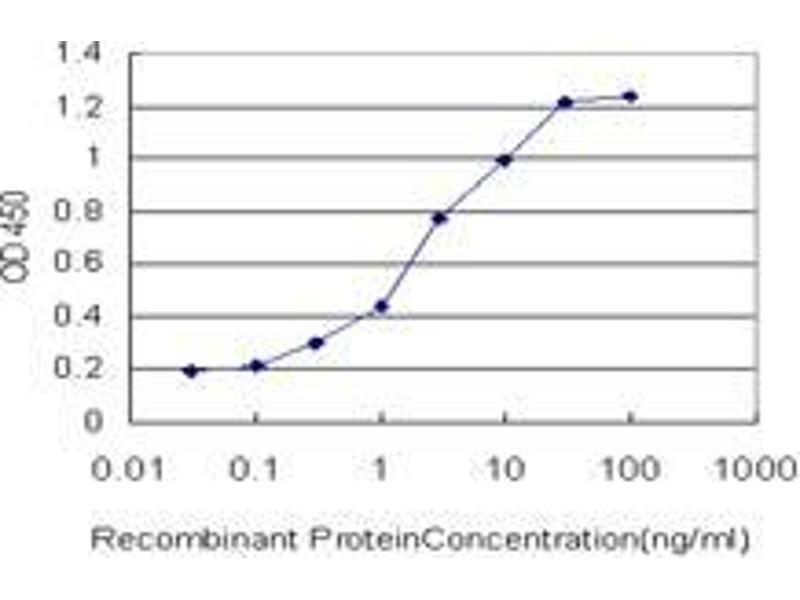 Immunohistochemistry (IHC) image for anti-Centromere Protein J (CENPJ) (AA 979-1089) antibody (ABIN394394)