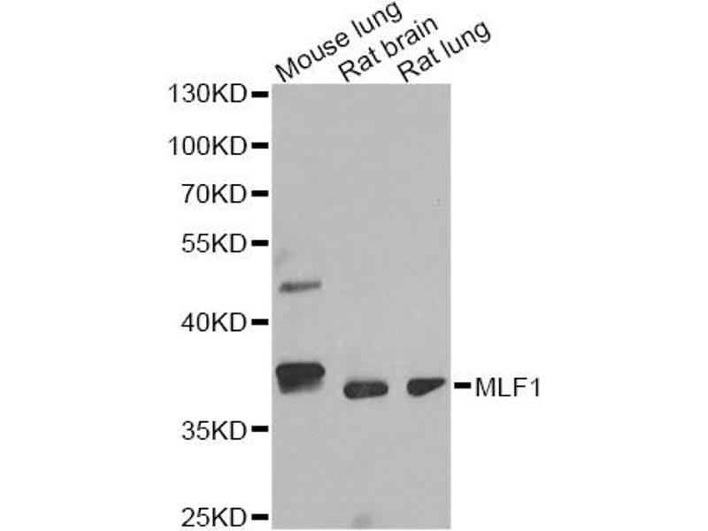 Image no. 1 for anti-Myeloid Leukemia Factor 1 (MLF1) antibody (ABIN6567882)